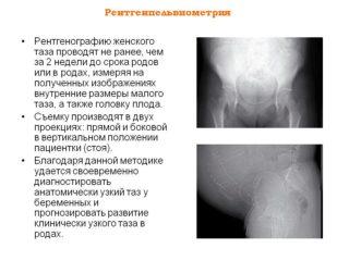 Рентген таза особенности показания подготовка проведение расшифровка