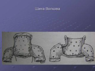 Изображение - Шина при дисплазии тазобедренных суставов для ребенка 032-1-320x240