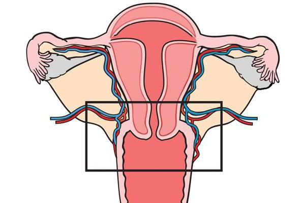 Степени дисплазии эндометрия матки