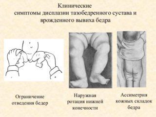 Изображение - Предвывих тазобедренного сустава у детей лечение 5-638-320x240