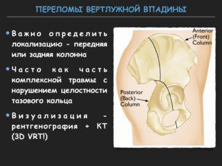 Какие последствия имеет перелом вертлужной впадины и как лечится. Несрастающиеся переломы вертлужной впадины