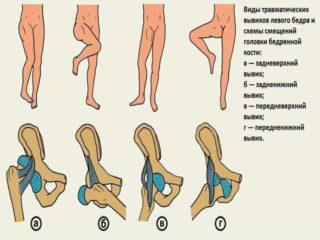 Как самостоятельно вправить тазобедренный сустав в домашних условиях