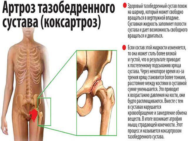 Заболевания тазабедренного сустава цементный сустав