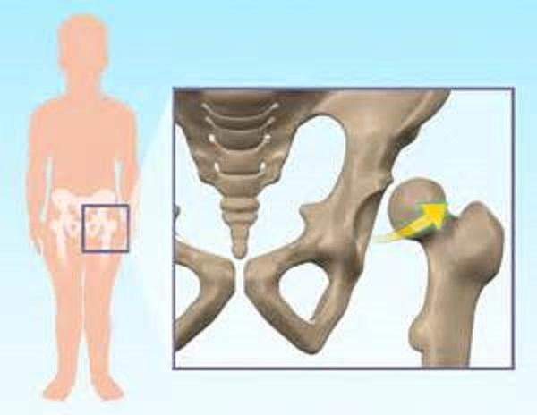 Симптомы, причины и лечение подвывиха тазобедренного сустава