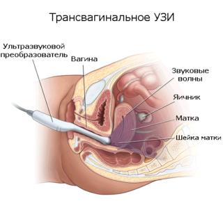 Узи органов малого таза что включает 13