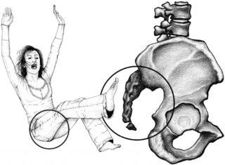 Перелом копчика, симптомы, лечение, последствия
