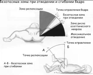 Гимнастика при дисплазии тазобедренных суставов у новорожденных