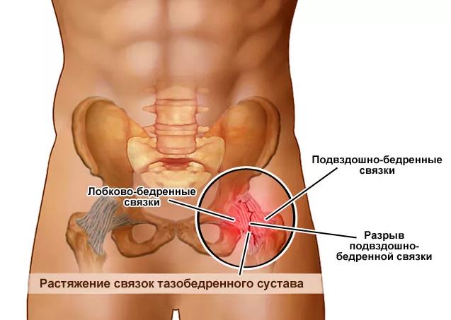 Растяжение связок тазобедренного сустава: симптомы и лечение упражнениями связок сустава бедра