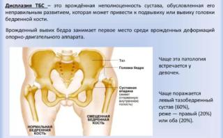 Изображение - Предвывих тазобедренного сустава у детей лечение Screenshot_3-6-320x198
