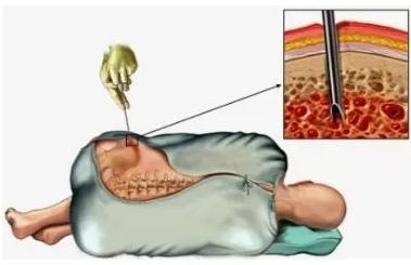 Биопсия костного мозга. безопасность и возможные последствия