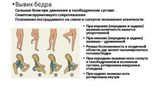 Антеторсия тазобедренных суставов у детей
