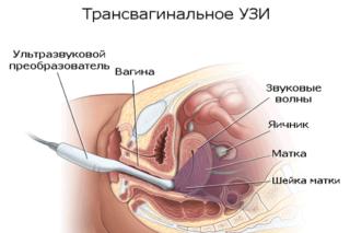 Болит живот при беременности после узи