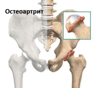 Схема лечения лигаментоза большого вертела тазобедренного сустава