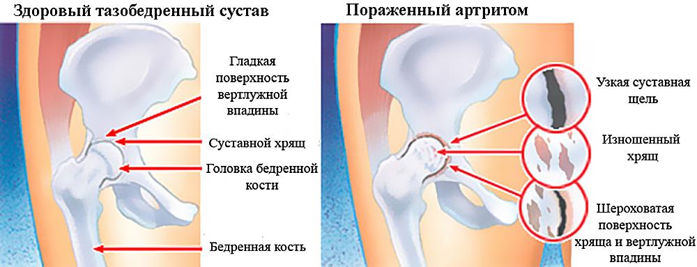 Заболевания тазабедренного сустава лечение воспаление голеностопного сустава