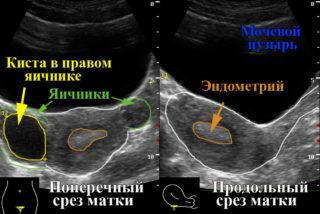 Узи органов малого таза что включает 17