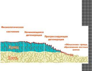 Изображение - Как нарастить хрящевую ткань в тазобедренном суставе htmlconvd-iJ7SoT6x1-320x246