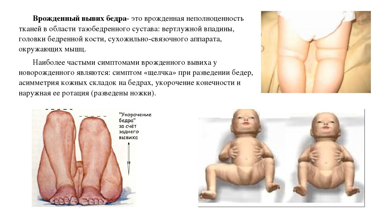 Симптом щелчка тазобедренного сустава симптомом соскальзывания, симптомом неустойчивости мениск коленного сустава реалитация