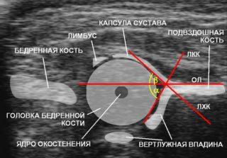 Изображение - Дисплазия тазобедренных суставов мрт img1_305-320x223