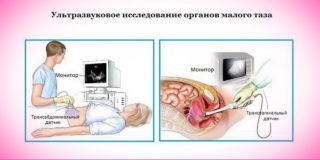Узи органов малого таза расшифровка