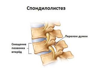 Крестцово подвздошный сустав связки - Лечение Суставов