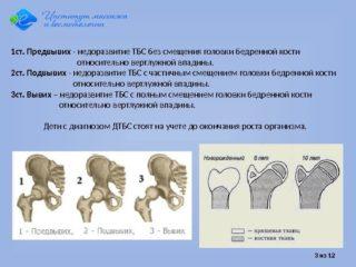 Физиологическая незрелость тазобедренных суставов у новорожденных в 1 месяц