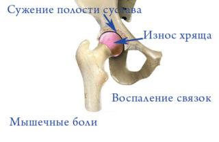 Если болит тазобедренный сустав к какому врачу обращаться женщине