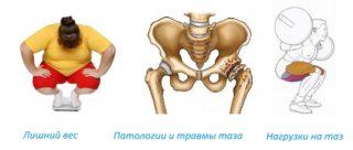 Изображение - Щелчки в тазобедренном суставе без боли prichiny-osteoskleroza-tazobedrennogo-sustava-320x136