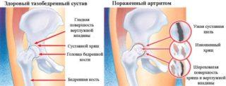 Изображение - Разрыв связки тазобедренного сустава лечение razrushenie-hryaschevoy-tkani-pri-artrite-768x294-320x123