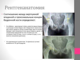 Изображение - Деформация тазобедренных суставов лечение slide-19-1-320x240