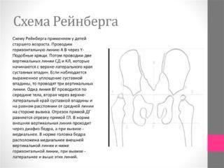 Изображение - Дисплазия тазобедренных суставов мрт slide-20-1-320x240