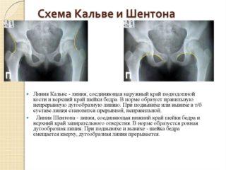 Рентген описание дисплазии тазобедренных суставов у детей