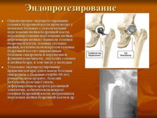 Изображение - Как нарастить хрящевую ткань в тазобедренном суставе slide_20-320x240