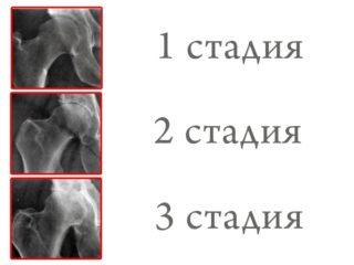 Разрушение тазобедренного сустава: симптомы, лечение износа