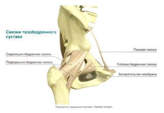 Изображение - Разрыв связки тазобедренного сустава лечение svyazki-tbs-320x221