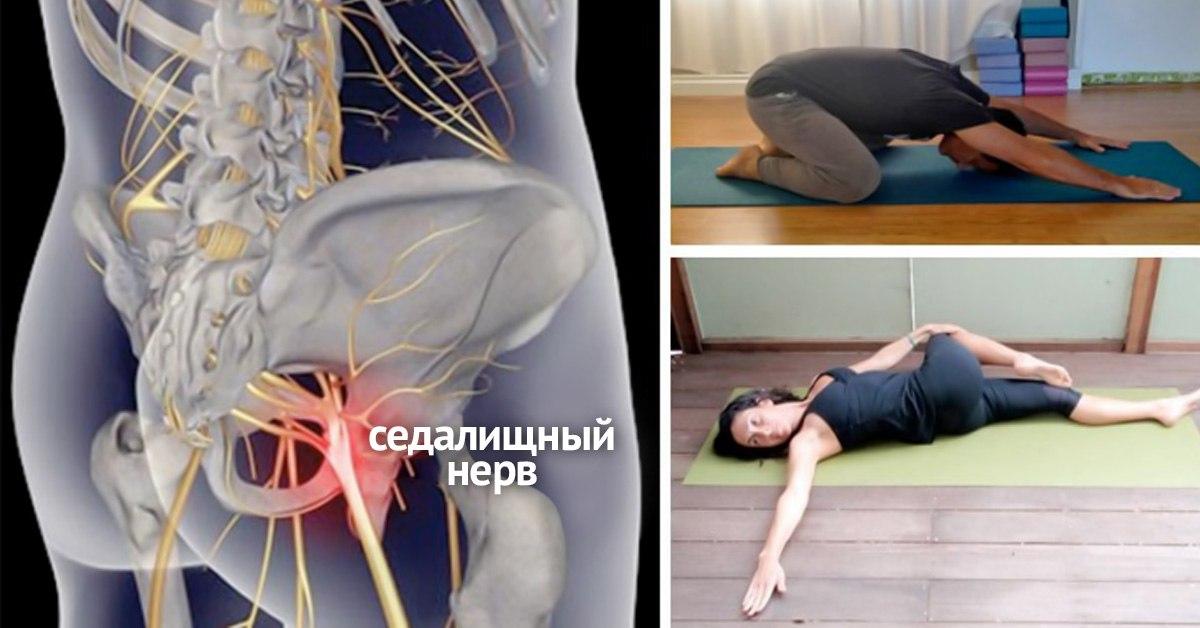 Позы йоги для разработки седалищного нерва при его защемлении