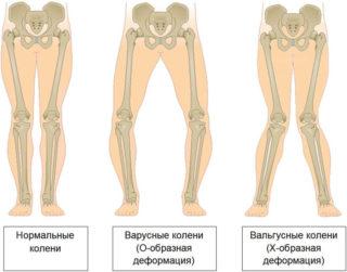Изображение - Деформация тазобедренных суставов лечение valgusnayadeformatsiyakolennixsustavovpr_38B0AC7A-320x251