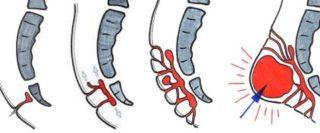 Киста копчика - причины возникновения, симптомы и лечение