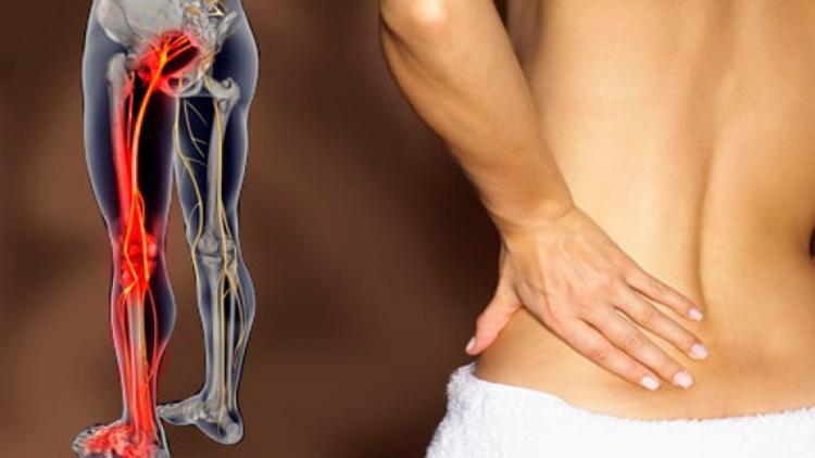 Медикаментозное лечение ущемления тазобедренного нерва
