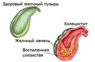 Боль внизу живота справа при беременности 28 недель thumbnail