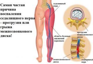 Невралгия таза симптомы