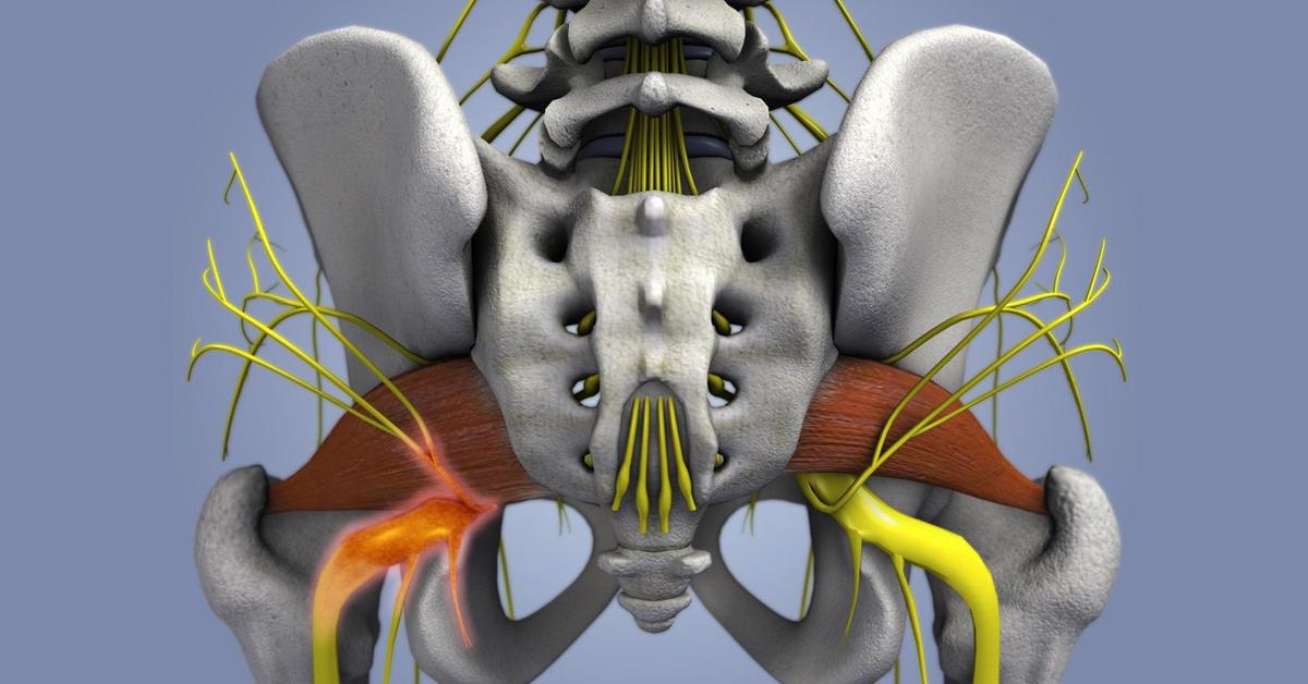 Сидальческий нерв где находится фото у человека