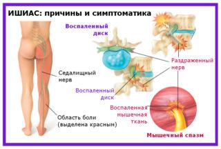 Невропатия седалищного нерва: причины, симптомы, лечение и прогноз
