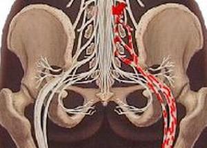 Можно ли греть седалищный нерв при воспалении