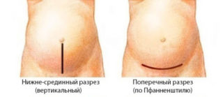 Боли после полостной операции на животе