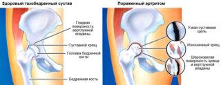 Изображение - Контрактура тазобедренного сустава artrit-tazobedrennogo-systava-1-1-320x123