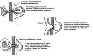 Пупочная грыжа у новорожденных – симптомы, лечение, массаж, бандаж