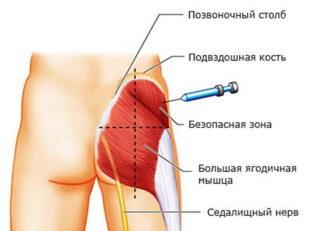 Повреждение седалищного нерва при травме