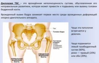 Изображение - Контрактура тазобедренного сустава pochemu-u-rebenka-hrustyat-sustavy-8-320x204