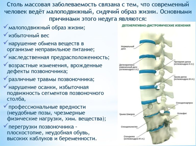 Артроз тазобедренного сустава 3 степени лечение отзывы