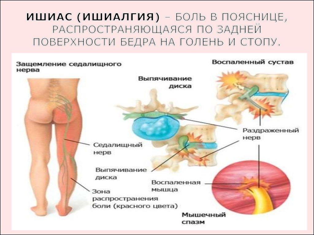 воспаление суставов тазобедренных